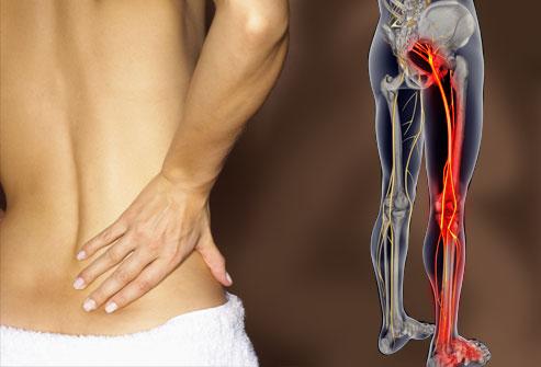 Le traitement de la hernie intervertébrale par le laser moskva