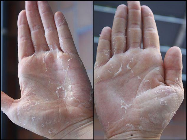 huile de desquamation de la peau
