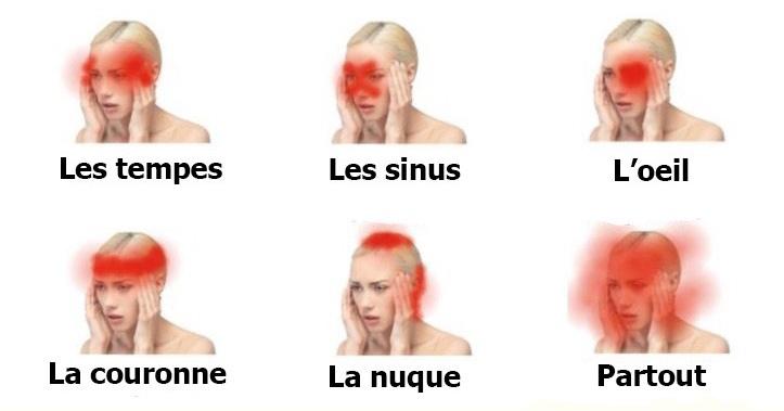 maux-de-tete